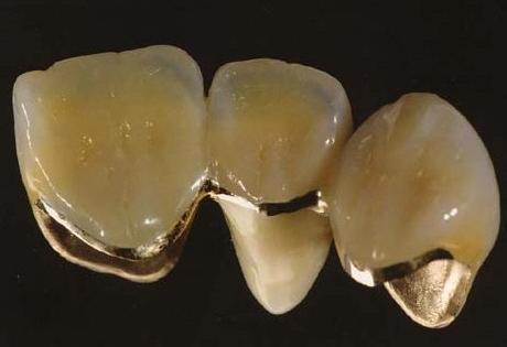 怎么样挑选适合自己的烤瓷牙 烤瓷牙对口腔有害吗