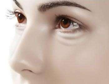 激光治疗黑眼圈怎么样 真的有效果吗
