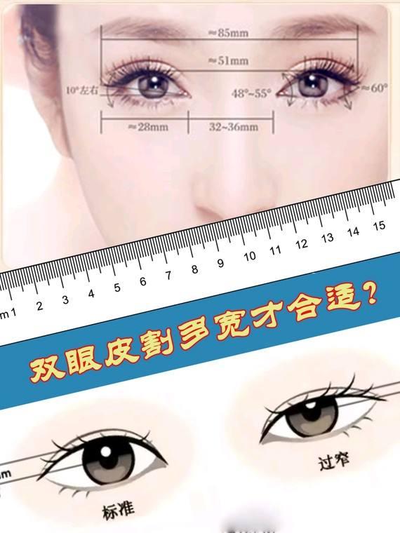 双眼皮失败还可以修复吗 有什么危害