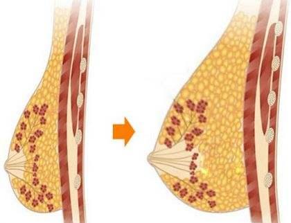隆胸失败了还能不能修复了 对身体有伤害吗