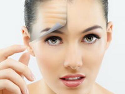 激光除皱保养你的肌肤 让皱纹不再成为你的困扰