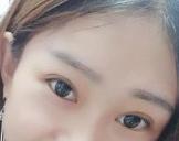 淮北濉溪敬贤堂医疗做双眼皮+<font color=red>开内眼角</font> 让我变成大眼美女