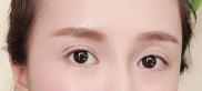 邵阳曹家医疗整形医院内切法去眼袋 现在我的眼袋不见啦