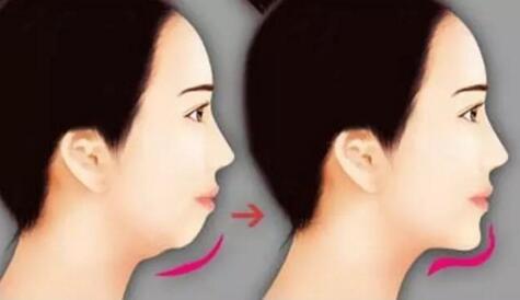 玻尿酸隆下巴 不留疤无痕美丽唾手可得