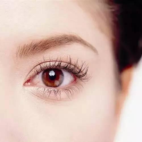 西安邵锦弘医生医疗 埋线双眼皮创造灵动双眼