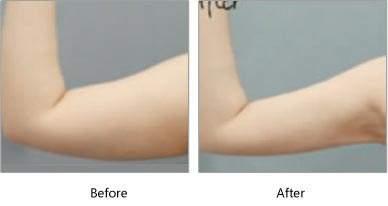 西安艾娜薇特美容整形医院手臂吸脂 快速瘦手臂的好方法