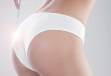 兰州海惠美容整形医院臀部吸脂 让你的背影更加有型