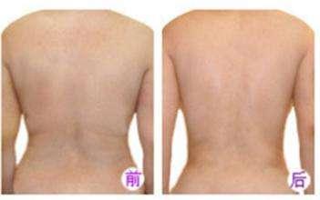 背部吸脂术 恢复你久坐不动脂肪堆积的性感后背