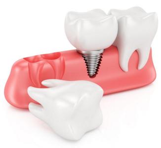 成都大华整形美容医院全口牙种植手安全吗
