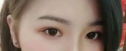 上海臻妮美容整形医院切开法双眼皮 效果自然美观我很满意