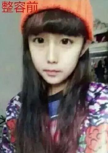 李蒽熙少女时代整容前照片 整容后成网络红人