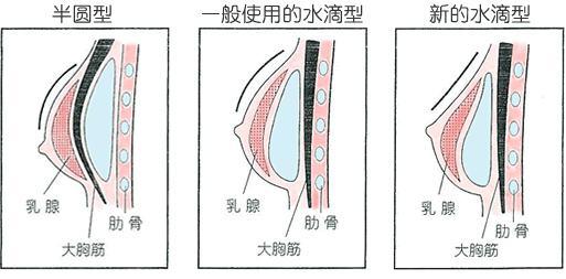 郑州悦美硅胶隆胸的效果怎么样