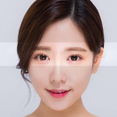 长沙泛美韩式双眼皮 价格怎么样