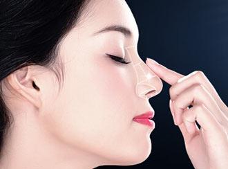 长沙美莱假体隆鼻 假体隆鼻和硅胶隆鼻的区别