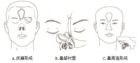 威海李青鼻部再造技术的效果怎么样