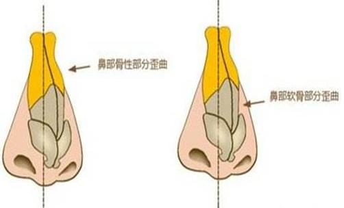 北京欧亚美美容整形医院歪鼻矫正好吗