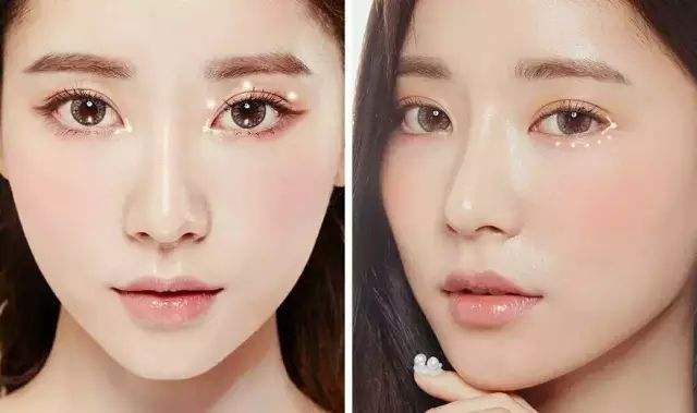 太原晋绮韩式双眼皮 拥有明星一般的双眼