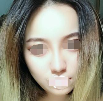 沈阳鑫美神美容整形医院做硅胶鼻综合手术 脸部变得精致了