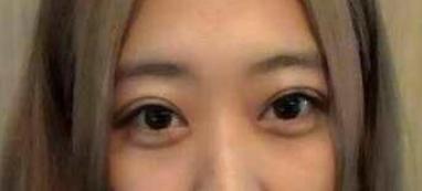 丹东日升美容整形医院切开法双眼皮 效果令人心动