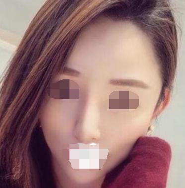 丹东口腔医院医疗脸部自体脂肪移植 成就更好看的自己