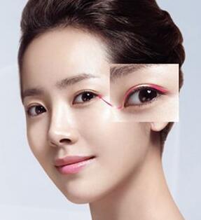 南华大学附属第一医院韩式双眼皮手术价位