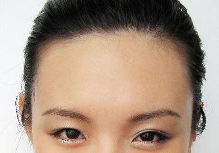 肇庆人民医院美容激光科额头激光脱毛多少钱