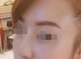 ?#26412;?#20029;雅美容整形医院自体软骨隆鼻 术后感觉效果不错