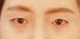广州鹏爱美容整形医院切开法双眼皮 完成了我的美丽蜕变