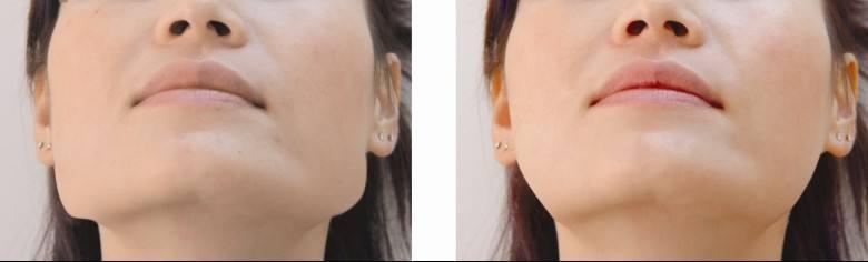 北京协和医院整形美容科去下颌角 让脸部曲线更加的立体