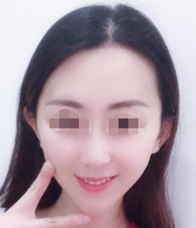 保定第五医院美容整形科自体软骨隆鼻 颜值?#24067;?#25552;升