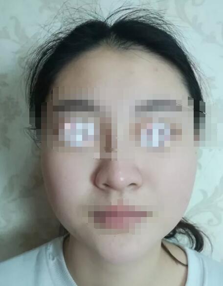 亳州市东方医院整形科脸部吸脂 跟上时代的潮流