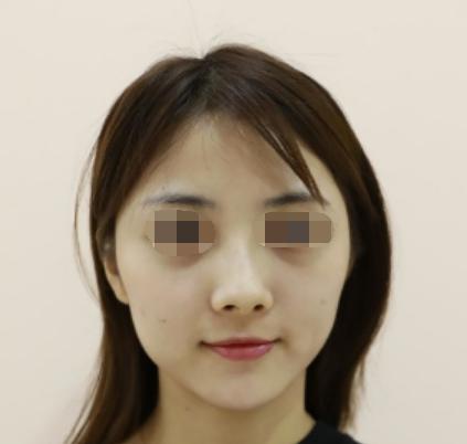 江门江海区人民医院整形科脸部自体脂肪移植 效果自然