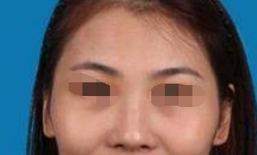 深圳武警医院医疗美容整形科软骨隆鼻 高挺鼻梁我更自信了