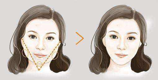 合肥中山医院颌面整形外科磨削下颌角 让人眼前一亮