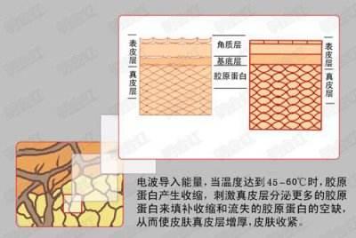 北京卫人中医院整形科电波拉皮除皱怎么样去除颈部皱纹