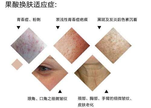北京解放军302医院皮肤科注射果酸嫩肤 让肌肤也小清新