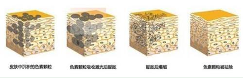 中国医科大学航空总医院皮肤科激光祛老年斑的效果怎么样