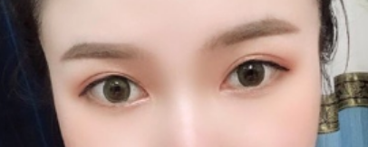 南昌二附医院医疗整形美容科切开法双眼皮 大眼我也拥有