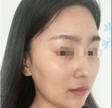 漳州第三医院美容整形科面部吸脂 远离大饼脸