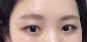 南宁第七人民医院美容整形科切开法双眼皮 我的眼睛也很美