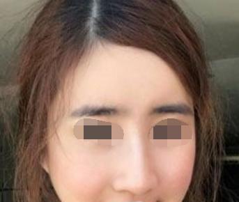深圳中医院美容整形科做硅胶隆鼻 跟大家分享术后效果