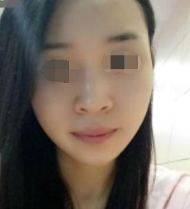 邯郸第七医院美容整形科下颌角整形术 甩走我的国字脸