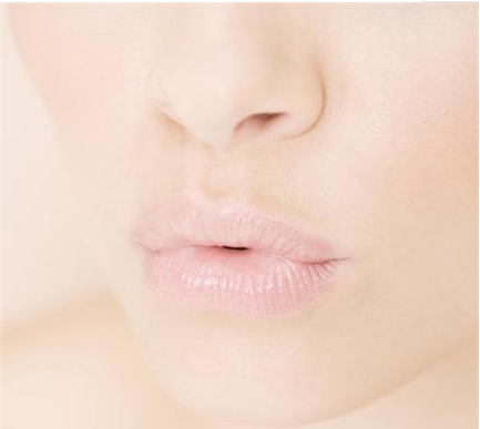 唇裂畸形不可拖 早一天修复早一天健康