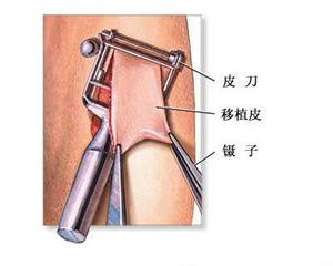 东莞大朗医院医疗烧伤整形科植皮治疗烧伤的效果怎么样呢