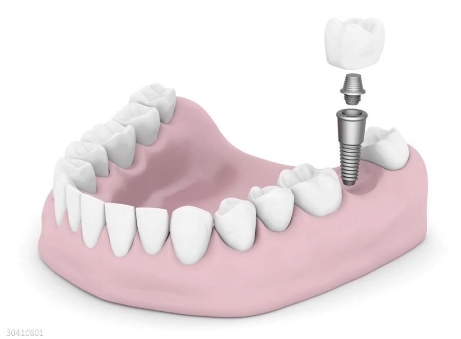 种植牙的价格贵吗 种植前后应当注意些什么呢