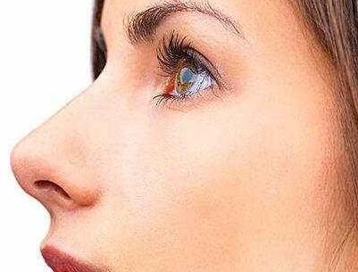 鼻翼缩小术 告别大蒜鼻让你的鼻翼不再肥大