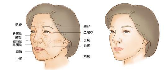 自体脂肪面部填充让你的脸部更显青春