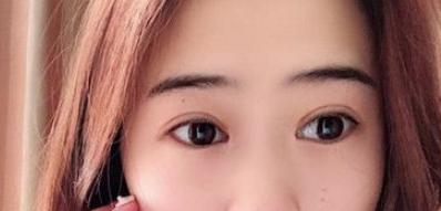 亳州市东方医院整形科切开法双眼皮术 让我的颜值蹭蹭上涨