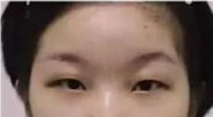 庆阳人民医院美容整形科做了切开法双眼皮 是我想要的模样