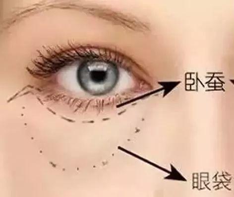 眼袋消除法 让你不在为眼袋烦恼